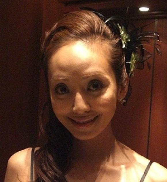 神田うの頬が不自然?劣化画像の検証から10年後の顔が明らかに